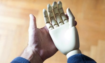 Born Without a Hand? No Problem — Just Use Your Mind