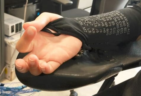 Over-the-Skin Stimulation a Possibility to Help Spur Movement