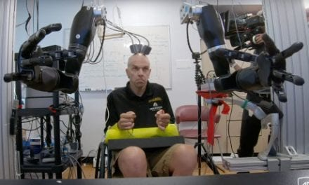 One Brain, Two Bionic Arms
