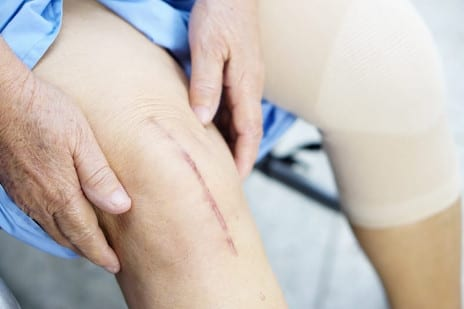 Knee Replacement Doesn't Solve Sexual Problems