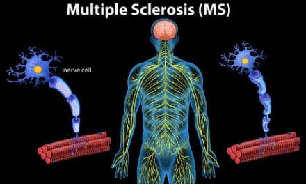 MS Progression is Apparently Slowing, Thanks to Medical Advances