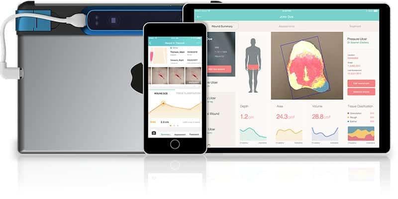 eKare Joins the NIH-Led Diabetic Foot Consortium