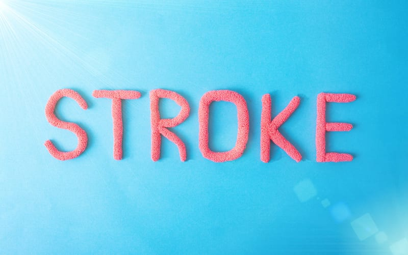 Nerve Cluster Stimulation Offers Beneficial Effects for Stroke Patients