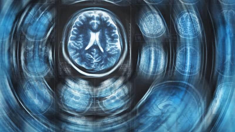No Ventilator for the Brain