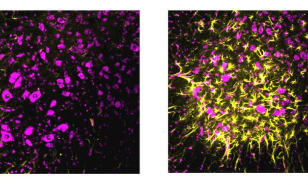 Could a Synaptic Safety Mechanism Provide Resilience to ALS?