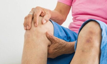 Treat Knee Osteoarthritis This Way, Global Experts Agree