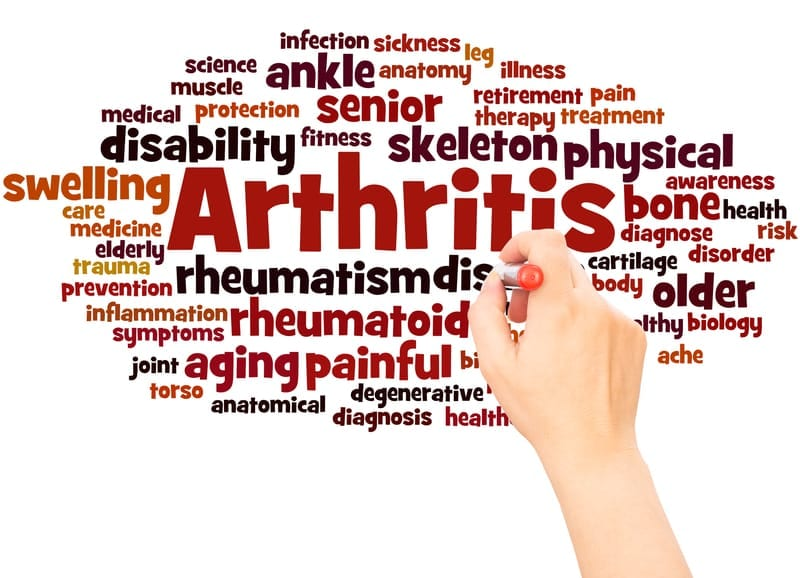 New Link from Obesity to Arthritis Apparent in Study