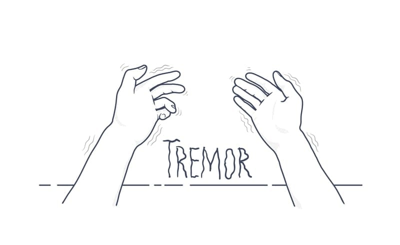 Managing Essential Tremor at Home Via Cala Trio is Feasible, New Data Suggests
