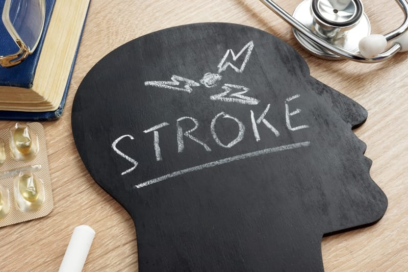 Combining VNS and Rehab Suggests Benefits for Stroke Survivors, Per Lancet Study