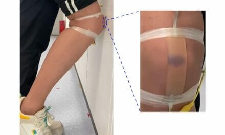 This Artificial Skin for Prosthetics is Designed to Bruise When Injured